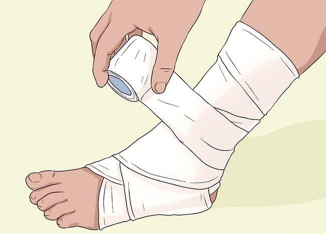 कैसे एक Bruise बनाने के लिए