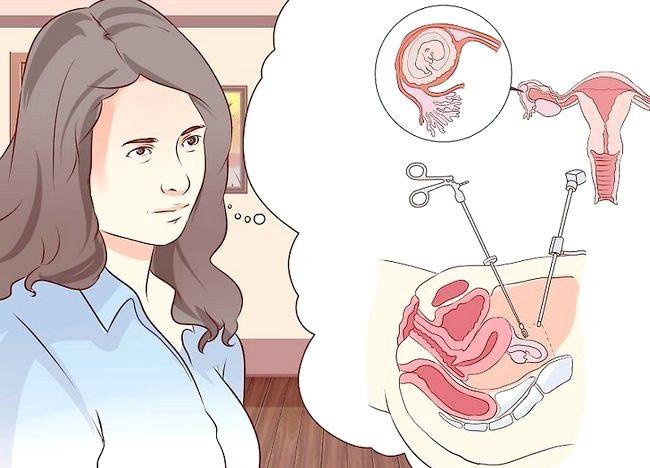 कैसे एक एक्टोपिक गर्भावस्था के छुटकारा पाने के लिए
